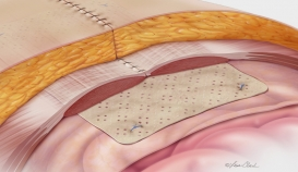 Biodesign® Hernia Graft