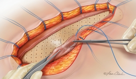 Biodesign® Incision Graft